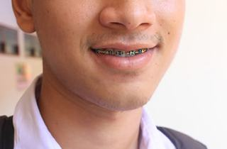 close up of young man with braces