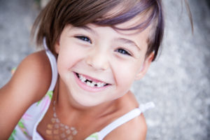 little girl with missing teeth smiling