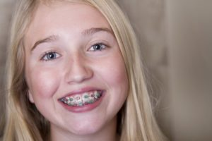 young person with braces