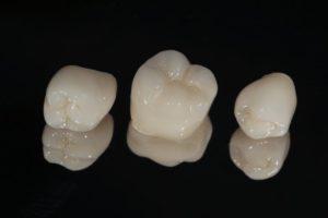dental crowns against a dark backdrop