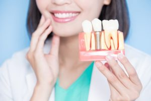 Mesquite dentist holding model jaw with dental implant